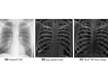 【Published】Separation of Bones from Soft Tissue in Chest Radiographs: Anatomy-specific Orientation-frequency-specific Deep Neural Network Convolution